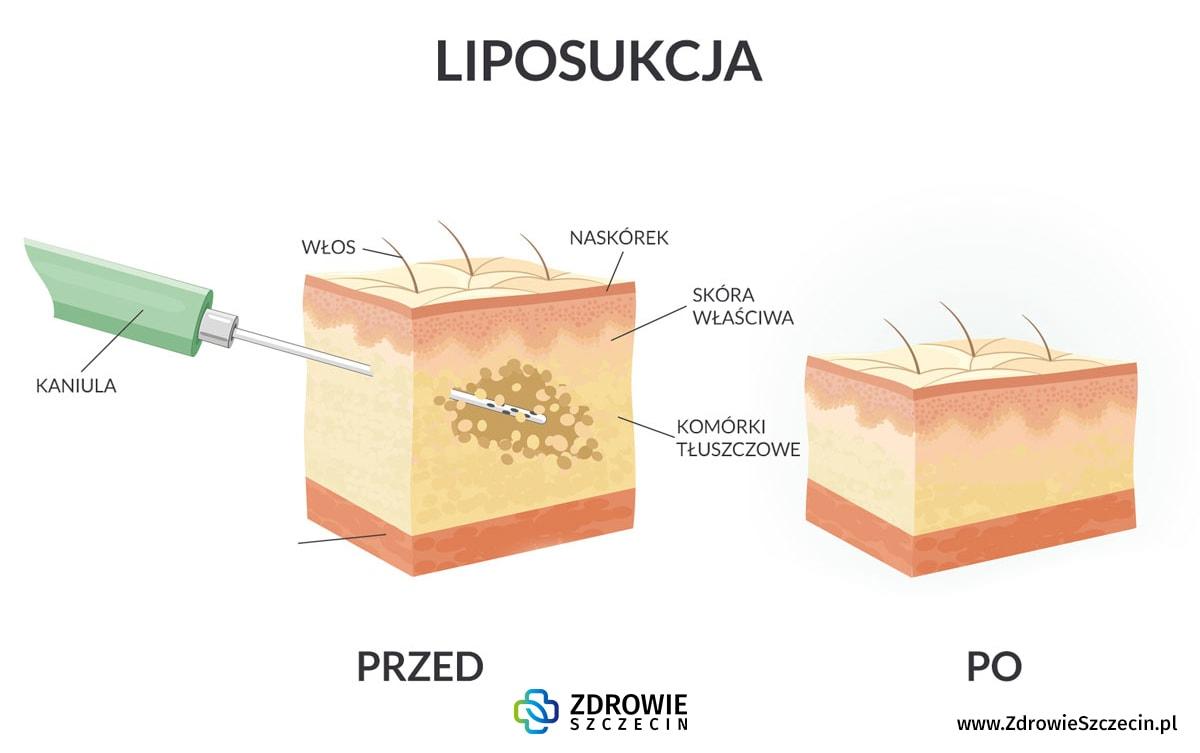 Liposukcja Szczecin, chirurgia plastyczna Szczecin, chirurg plastyk Szczecin