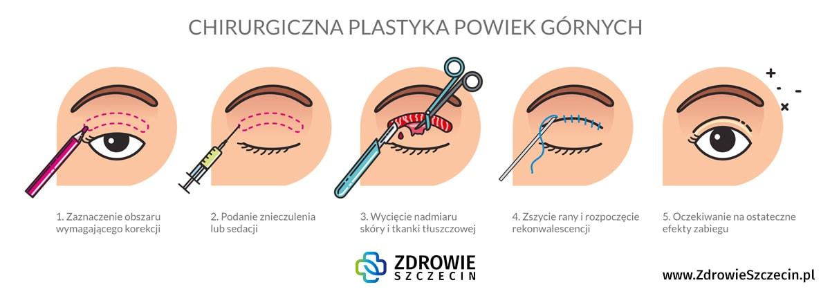 Plastyka powiek górnych Szczecin, chirurgia plastyczna Szczecin, chirurg plastyk Szczecin