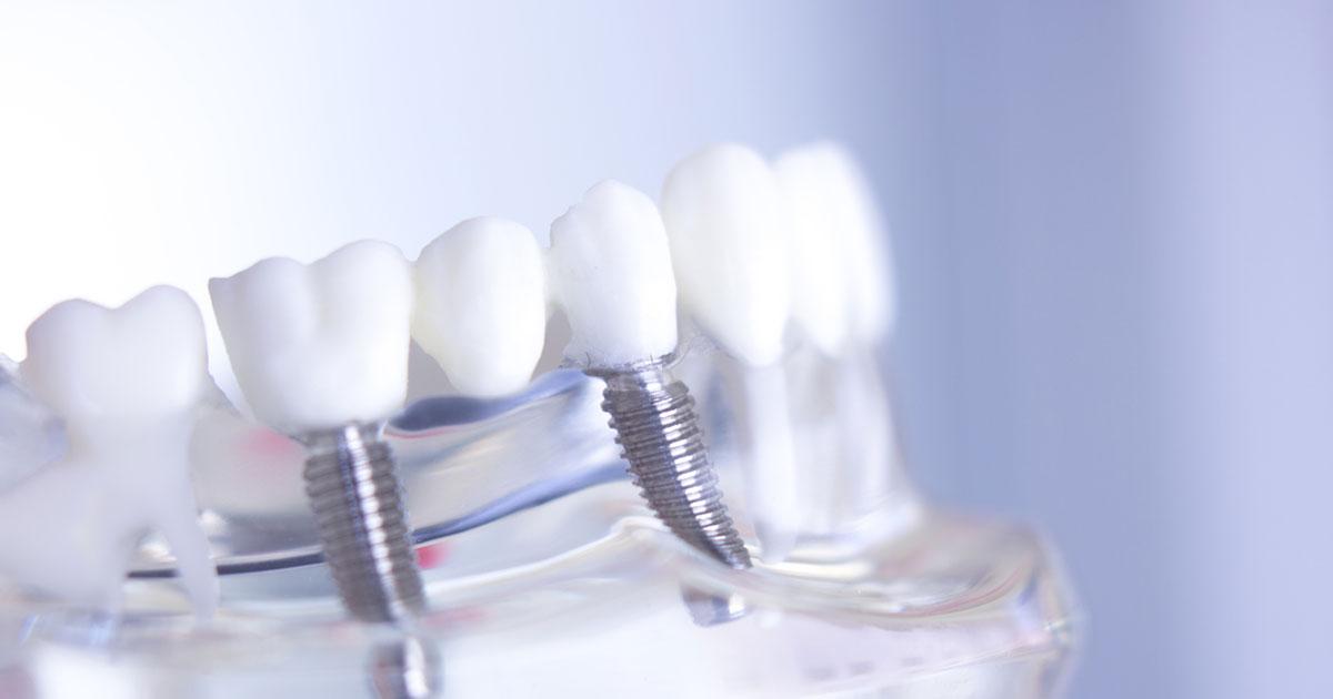 Implanty zębów Szczecin
