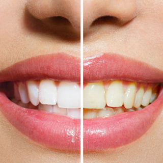 Wybielanie zębów Szczecin
